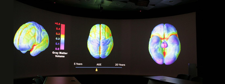 Gray matter brain diagrams at UCLA Brain Research Institute